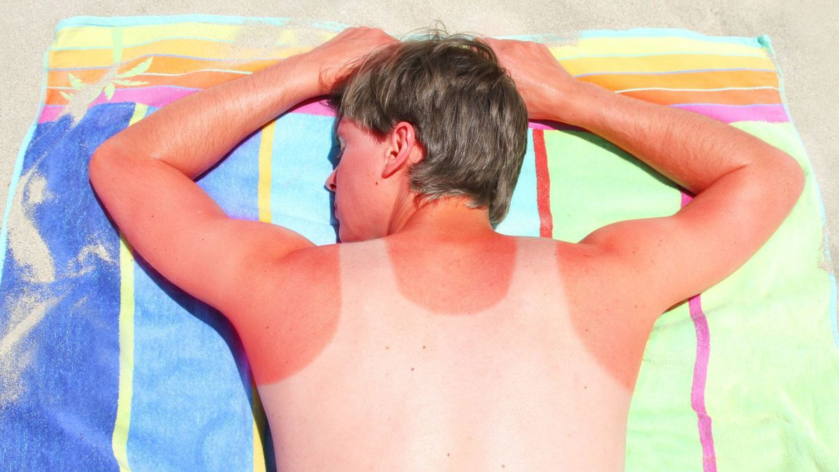 What To Do If You Get A Sunburn